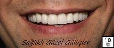 Sağlıklı Güzel Gülüşler -  Healthy Beautiful Smiles