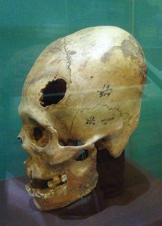 """valdanderthal: """"Paracas trepanned and modified crania Museo Nacional de Arqueología Antropología e Historia del Perú """""""