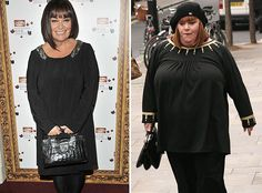 Dawn French is beautiful at any size.