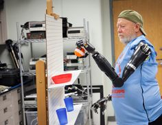 bilateral amputee makes history with APL modular prosthetic limbs