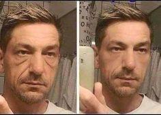 Antes                y    Después Aplicación en las bolsas debajo de los ojos