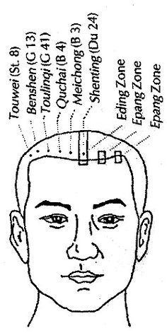 Synopsis of Scalp Acupuncture zone charts