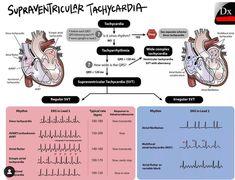 Icu Nursing, Pediatric Nursing, Nursing Tips, Nursing Notes, Inappropriate Sinus Tachycardia, Sinus Massage, Cardiac Sonography, Ekg Interpretation, Ventricular Tachycardia