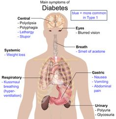 Symptoms of diabetes -  by Mikael Häggström via Wikimedia Commons