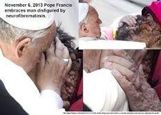 Pope Francis embraces disfigured man