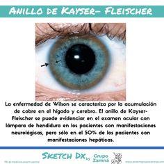 Kayser fleischer anillo síntomas de diabetes