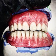 @Regran_ed from @tersentabiet - #dental #dentistry #denture #odonto #stomatology #teeth #dentalsmile #dentalart #dentalpics #dentalphoto… Dental Art, Dental Hygiene, Dental Photos, Dental Technician, Dental Services, Love Tattoos, Dentistry, Teeth, Wax