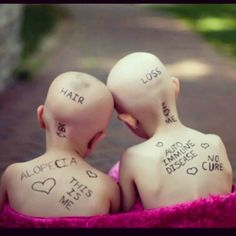 These two little girls are amazing. I follow there mothers on Instagram.. Courageous little beauties
