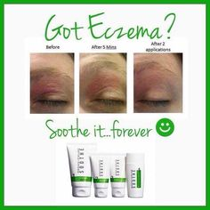 Have Eczema?? Look at these results!! Rodan Fields Soothe Regimen can help treat your sensitive skin forever!! With a 60 day money back guarantee why not give it a shot?? Contact me today and learn how to save 10% and get free shipping!! #rodanandfields #beautifulskin