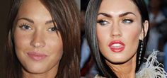 7 Celebrities You Probably Didn't Realize Had Plastic Surgery