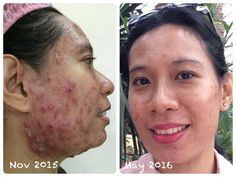 ageLOC Youthspan is helping her somuch to regenerate & fix it her body. Slowly her face become better & better