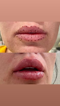 Cosmetic Fillers, Lip Fillers, Lip Job, Hyaluron Filler, Boutique Spa, Lip Injections, Anti Aging Facial, Aphrodite, Beauty Ideas