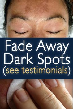 Here's a Great Solution Recommended by Beauty Experts to clear up dark spots, age spots & sun spots. Brown Spots On Skin, Lighten Dark Spots, Brown Spots On Face, Skin Spots, Cream For Oily Skin, Moisturizer For Oily Skin, How To Fade, Skin Images, Dark Spot Corrector