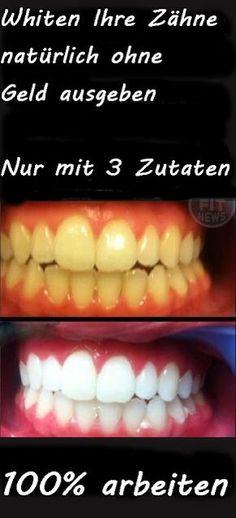 Beauty-Tipps für Sie: Bleichen Sie Ihre Zähne natürlich ohne Geld ausgeb...-Zähne-