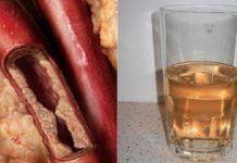 Ten napój odblokuje twoje tętnice i chroni przed chorobami serca Cholesterol, Sausage, Food, Education, Vitamin B17, Neurons, Dementia, Natural Medicine, Health Tips