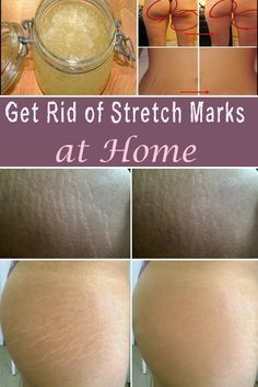 Getting rid of stretch marks is very difficult because no matter how many treatments you try, the stretches won't disappear completely. But you can reduced them by using these homemade treatments.