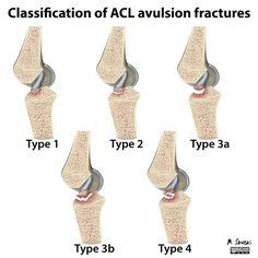 White E, Patel D, Matcuk G et-al. Cruciate ligament avulsion fractures: Anatomy, biomechanics, injury patterns, and approach to management. Emerg Radiol.;: 1-12. Emerg Radiol (full text) - doi:10.1007/s10140-013-1121-0