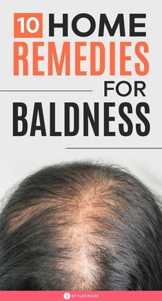 10 Home Remedies For Baldness