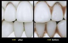 YAS PneumaticOral Irrigator Dental Water Jet Flosser Tooth Cleaning at Banggood