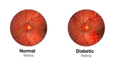 Diabetic retinopathy is the leading cause of blindness in adults in the United States. The medical industry would have you believe the disease is not reversible and the best that can be done is to slow down the diseases progression.