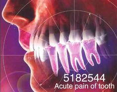Grabovoi number sequence for acute pain of tooth.