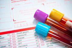 Badania krwi – dlaczego są tak ważne przy ustaleniu indywidualnej diety?