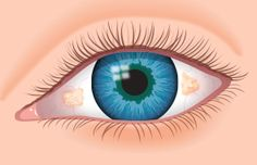 A pinguecula (pin-GWEK-yoo-lah) is a yellowish, slightly raised thickening of the conjunctiva on the white part of the eye - AllAboutVision.com