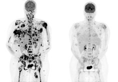 PET scan of a patient with metastatic melanoma, before & after treatment with a BRAF inhibitor