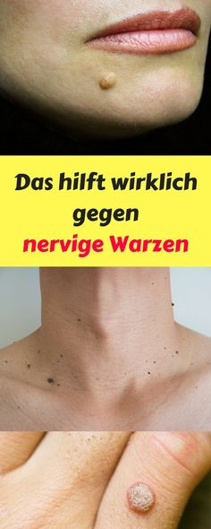 Warts - 10 Ways to Get Rid of Them Naturally - - Away # Naturally . - Warzen – 10 Wege sie natürlich loszuwerden – – Warts – 10 Ways to Get Rid of Them Naturally – – Rid Of # Naturally Warts Remedy, Warts On Face, Skin Tag, Healthy Lifestyle Tips, Sciatica, Facon, Face Care, Home Remedies, How To Lose Weight Fast