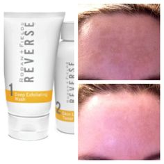 Before and After - Sun Damage using Reverse regimen