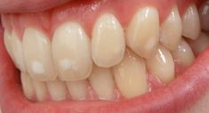 """What is malocclusion? Malocclusion means having crooked teeth or a """"""""poor bite. Bite refers to the way the upper and lower teeth line up. In a normal bite, the upper teeth sit slightly forward of the lower teeth. Very few people have a perfect bite."""