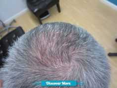Hair Transplant Before And After at our Neograft Artas Robotic FUE center in Houston www.hairphysician... #fitnessbeforeandafterpictures, #weightlossbeforeandafterpictures, #beforeandafterweightlosspictures, #fitnessbeforeandafterpics, #weightlossbeforeandafterpics, #beforeandafterweightlosspics, #fitnessbeforeandafter, #weightlossbeforeandafter, #beforeandafterweightloss