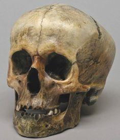 Skull of a Roman Gladiator