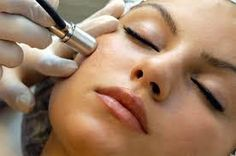 Microdermabrasion acne treatment refers to the mechanical peeling off of the superficial layer of skin. Acne and acne scars from the face, hand, back and chest can be removed by Microdermabrasion. Glycolic Peel, Glycolic Acid, Acne Scar Removal, Hair Removal, Cosmetic Procedures, Cosmetic Clinic, Chemical Peel, How To Get Rid Of Acne, Summer Beauty