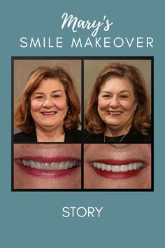 Read how a smile makeover improved Mary's life.  Dental veneers, cosmetic dentistry, life changing dentistry, beautiful smiles #rochesteradvanceddentistry #lifechangingdentistry Teeth Makeover, Smile Makeover, Cosmetic Dentistry Procedures, Implant Dentistry, Dental Bonding, Restorative Dentistry, Teeth Straightening, Dental Veneers, Smile Dental