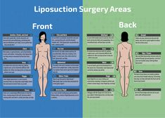 Popular Liposuction Surgery Areas Infographic Did you know you can get liposuction in other places besides your stomach? Areas that can have Liposuction include from under your chin down to ankles and almost anywhere in between. Thigh Liposuction, Liposuction Procedure, Weight Loss Before, Weight Loss Tips, Lose Weight, Mommy Makeover, Operation, Tummy Tucks, Health And Fitness