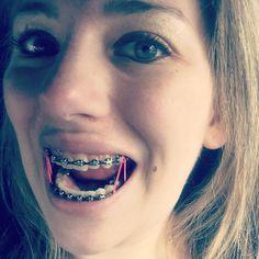 #braces #girlswithbraces #metalbraces #elastics #powerchain