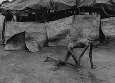 Rwandan genocide 1994 - Survivor of Hutu death camp. (by James Nachtwey)