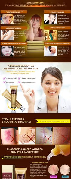 How to Get Rid of Acne Scars in Less Than a Week ? You will quickly get rid of acne scars this perfect cream. All About: Acne remedies acne remedies overnight acne scars acne treatment acne causes acne mask acne remedies fast Black Spots On Face, Brown Spots On Skin, Dark Spots, Brown Skin, Scar Removal Cream, Acne Scar Removal, Hair Removal, Lotion, Acne Treatment At Home
