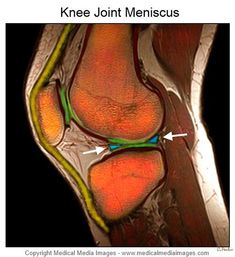 Knee ligaments: A Color MRI Medical Images showing the Knee Joint ...