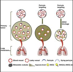 Breast cancer metastasis slowed by targeting cells that regulate blood flow.