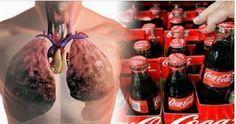 Quase todo mundo já sabe que Coca-Cola e os refrigerantes como um todo são péssimos para a saúde.Também se sabe que a Coca-Cola destrói os ossos (tem muitos vídeos com experiências na internet).