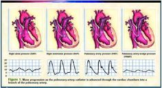 http://www.modernmedicine.com/modernmedicine/Cardiovascular/PA-catheters-What-the-waveforms-reveal/ArticleStandard/Article/detail/107156#f4  A quick overview of PA Catheters