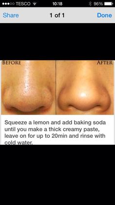 How To Get Rid Of PORES!!