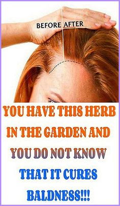 You have this herb in the garden and you do not know that it cures baldness – Herbal Medicine Book Natural Medicine, Herbal Medicine, Holistic Medicine, Ayurveda, Health And Nutrition, Health Tips, Health Zone, Health Facts, Health Fitness