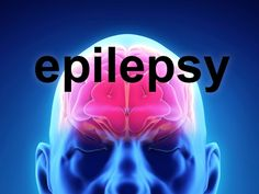 I am an epileptic - by Dr. Lee Outlaw Having been one all my life, it is sometimes easy to overlook the fact that I am indeed an epileptic.