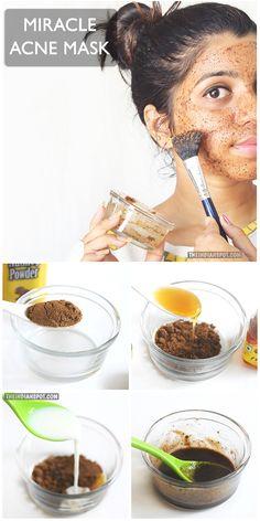 BEAUTY DIY: CLEAR ACNE WITH NUTMEG