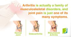 did you know?  Visit us  jointpainrepair.com  Via  google images  #jointpain #jointpains #jointpainrelief #kneepain #kneepains #kneepainnogain #arthritis #hipjoint  #jointpaingone #jointpainfree