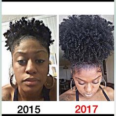 Do you want longer/fuller hair? Well, now it's FINALLY possible with these miracle products! My friends @hair_growth2017  is giving out risk-FREE trials daily. Check the LINK in their bio to order yours now‼️ 🙌🏾 @hair_growth2017 🙌🏾 @hair_growth2017 🙌🏾 @hair_growth2017