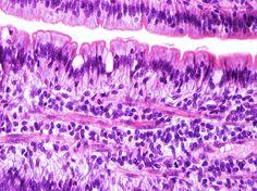 O tecido muscular liso forma uma série de órgãos que contraem involuntariamente como parte de suas atividades. Este tecido se difere dos outros tipos de tecido muscular  pela falta de estrias.